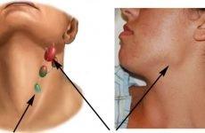 Гіперплазія підщелепних лімфовузлів: причини і лікування