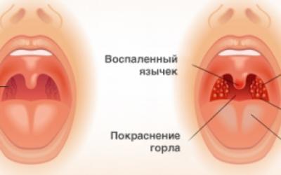 Гнійна ангіна у дітей – симптоми і ознаки, лікування, профілактика