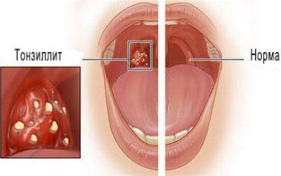 Гнійна ангіна у дорослих – фото, симптоми і лікування, перші ознаки, профілактика