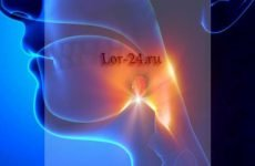 Гнійний фарингіт – симптоми і лікування