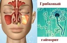 Грибковий гайморит – 7 симптомів і правильне лікування, ускладнення