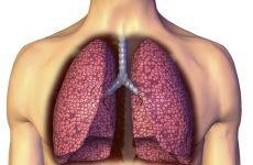 Інфільтрати в легенях (синдром вогнищевого) – що це таке? 5 симптомів