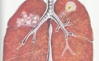 Інфільтративний туберкульоз легень заразний чи ні (фаза розпаду)