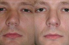 Викривлення носової перегородки: причини і лікування операцією і без