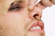 Як лікувати гнійники в горлі: неприємний запах і присмак з носоглотки