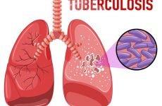 Як передається туберкульоз від людини до людини, чи можна заразитися?