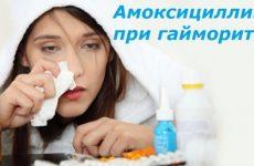 Як приймати амоксицилін при гаймориті – дозування дорослі і дітям