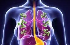 Кандидоз легень: причини кровохаркання, лікування і 5 симптомів