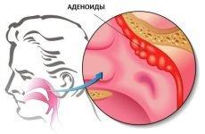Краплі при аденоїдах: у дітей спреї, антибіотики і ліки в ніс, щоб кращі дихати
