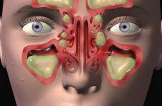Катаральний гайморит (синусит): симптоми і лікування у дорослих і дітей