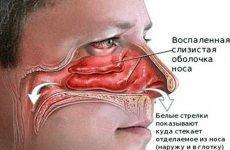 Катаральний риніт: гострий і хронічний, симптоми і лікування