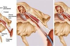 Катетеризація слухової труби: підготовка, проведення і протипоказання