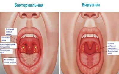 Гас при ангіні: як лікувати горло в домашніх умовах, рецепти