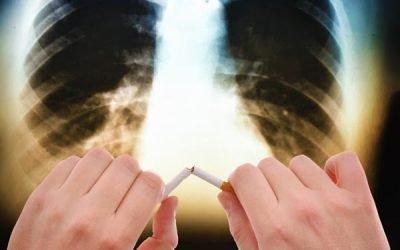 ХОЗЛ: 6 методів лікування вдома: дихальна гімнастика та народні засоби