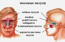 Кіста гайморової пазухи: опис, симптоми, лікування