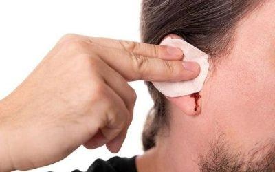 Кров з вуха при отиті у дитини і дорослих: чому і що робити