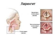 Алергічний ларингіт: симптоми і лікування у дорослих і дітей, профілактика