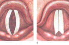 Ларингіт у дорослих: симптоми і лікування в домашніх умовах