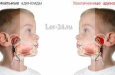 Лікування аденоїдів без операції у дітей і дорослих