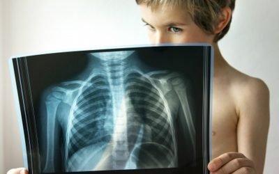 Лікування пневмонії у дітей: щеплення, симптоми, реабілітація