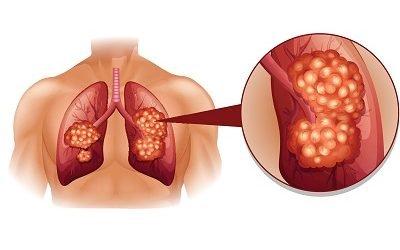 Лікування раку легень: чи можна користуватися народними засобами?