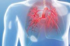 Легенева гіпертензія: симптоми, лікування, прогноз життя – близько 5 років