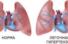 Легенева гіпертензія 1,2 ступеня – що це таке, класифікація
