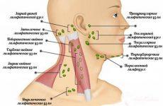 Лімфоаденопатія вузлів шиї у дітей і дорослих: причини та діагностика