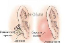 Мастоїдит: причини, симптоми, діагностика і лікування