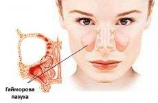 Може гайморит бути без нежиті (соплів), закладеності носа і температури