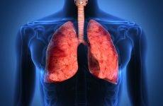 Чи можна заразитися відкритою формою туберкульозу?