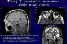 Мукоцеле лобової пазухи: симптоми і лікування, операція