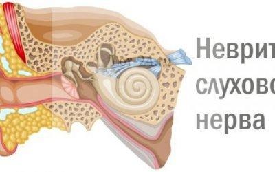 Неврит слухового нерва: гострий, хронічний