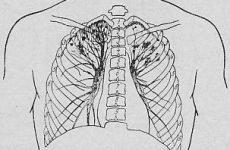 Вогнищевий туберкульоз легенів: заразна ця форма? 4 пункту лікування