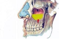 Одонтогенний гайморит (синусит) з-за хворого зуба: симптоми і лікування