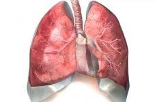 Небезпечний двосторонній гідроторакс легенів і що це за хвороба?