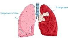 Чи небезпечна гамартома легкого – 4 ознаки, способи діагностики та лікування