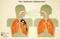 Небезпечний туберкульоз: симптоми, перші ознаки на ранніх стадіях,