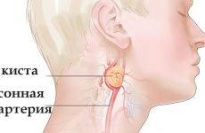 Операції при вроджених свищах і кіст шиї: опис та види