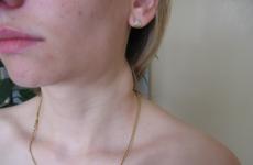 Опухли лімфовузли на шиї: що робити, як лікувати?