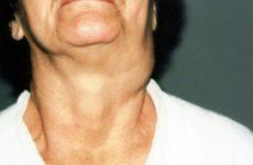 Пухлина на шиї праворуч, ліворуч або ззаду: симптоми і лікування