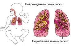 Гостра вірусна, атипова пневмонія у дітей і ще 10 видів недуги