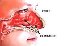 Гострий риніт (нежить): симптоми і лікування у дорослих