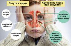 Гострий синусит: що таке, симптоми і лікування у дорослих
