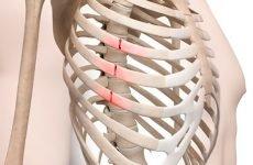 Перелом грудної клітини: 4 основні ознаки та перша допомога