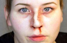 Перелом носа зі зміщенням і без: ознаки, симптоми і лікування