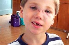 Перелом носа у дитини: симптоми, ознаки і лікування