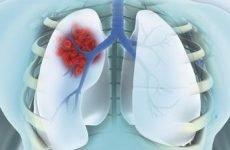 Периферичний і плоскоклітинний рак легені: 5 різновидів