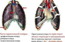 Плевродиафрагмальные спайки легень з обох сторін – 3 симптому