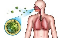 Пневмонія: заразна чи ні – Як не захворіти запаленням легенів